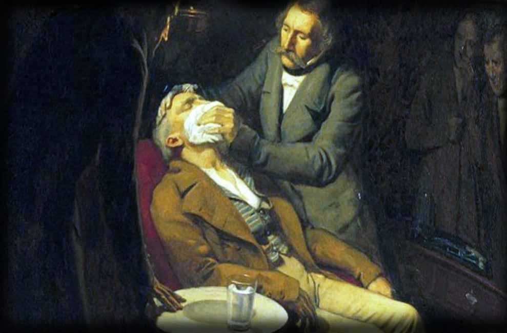 Anestezija pod narkozom 1845 god